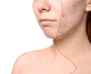 maskne, tratamientos para el acné, cuidado facial
