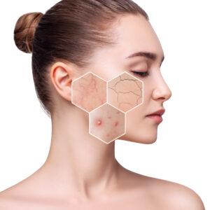 diagnóstico facial, matriskin, tratamiento facial madrid, comprar matriskin madrid