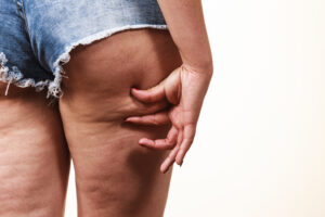masajes celulitis madrid, trucos celulitis, celulitis, como eliminar la celulitis