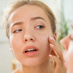 problemas en la piel, piel seca, piel reactiva, cuidados para la piel seca, Como afecta el cloro a tu piel